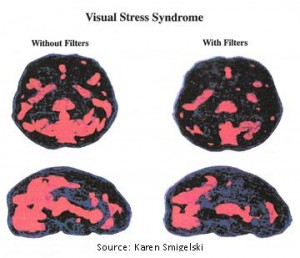 visual stress syndrome brain image